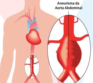 doencas_aneurisma