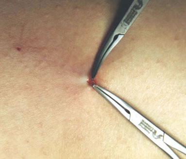 imag_microcirurgia2